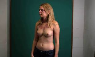 hanna hall topless to document bruises in scalene 8614 12