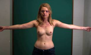 hanna hall topless to document bruises in scalene 8614 3