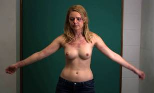 hanna hall topless to document bruises in scalene 8614 5
