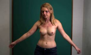 hanna hall topless to document bruises in scalene 8614 6