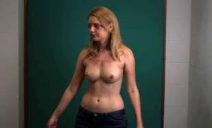 hanna hall topless to document bruises in scalene 8614 8