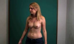hanna hall topless to document bruises in scalene 8614 9