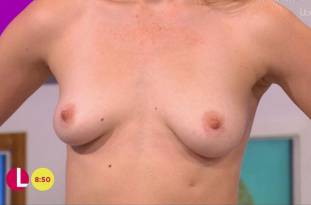 hannah almond topless for breast exam on lorraine 2263 12