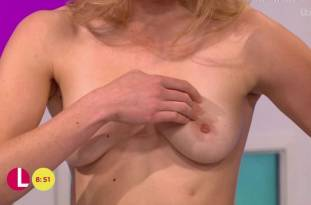hannah almond topless for breast exam on lorraine 2263 25